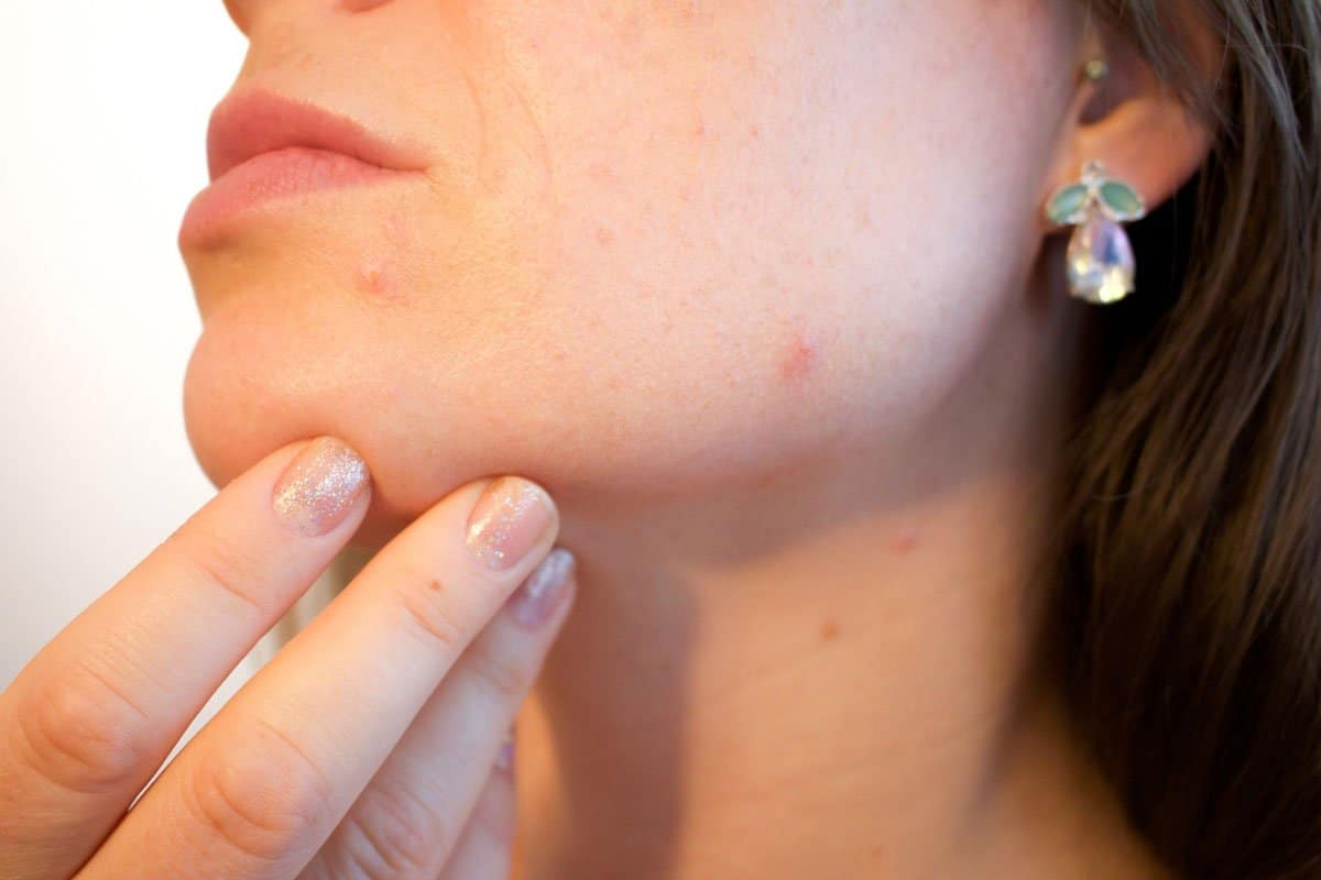 Different factors causing hyperpigmentation